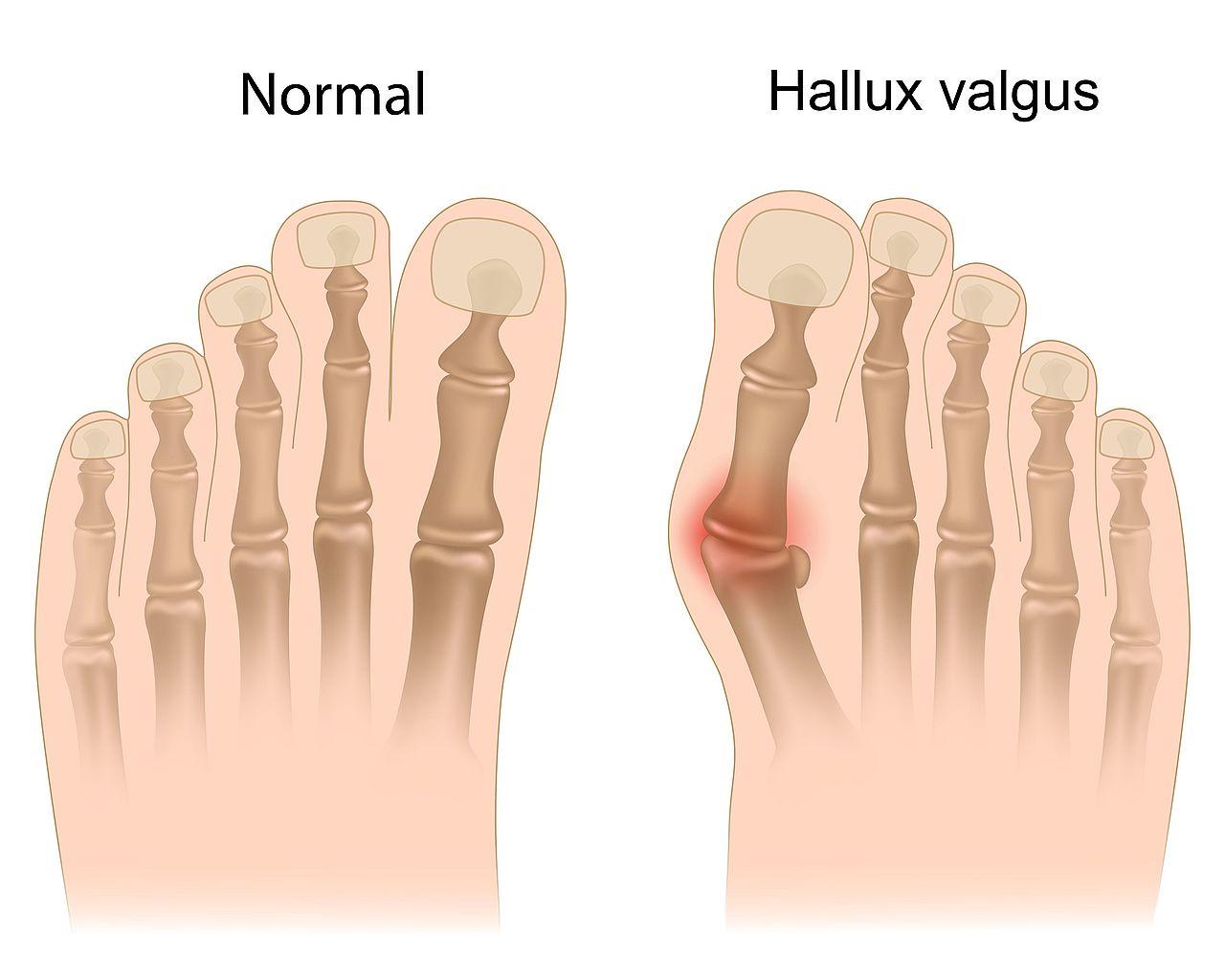 rheumatoid arthritis randevú