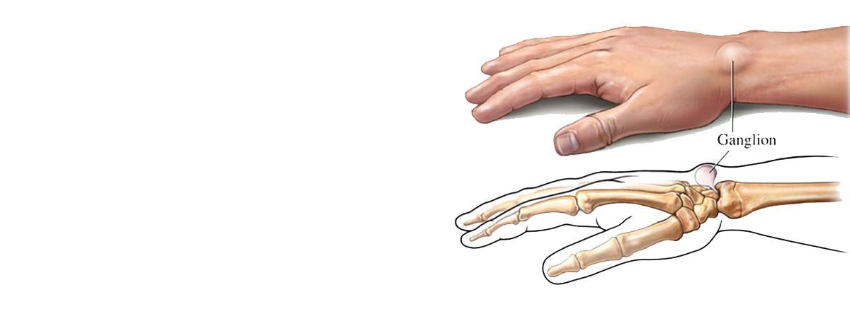 Ganglion On Wrist Prof Dr Mahmut Kmrc Ortopedi