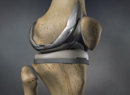 Total Knee Arthroplasty Prof Dr Mahmut K 214 M 220 Rc 220